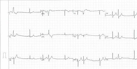 ekg-kardiologie-villach-zweytick
