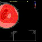 kardiologe-villach-zweytick-leistung-echo-2